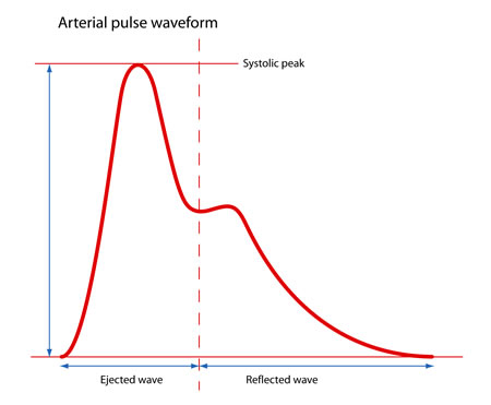 arterial pulse waveform s_2_orig features of pulse waveform medtach